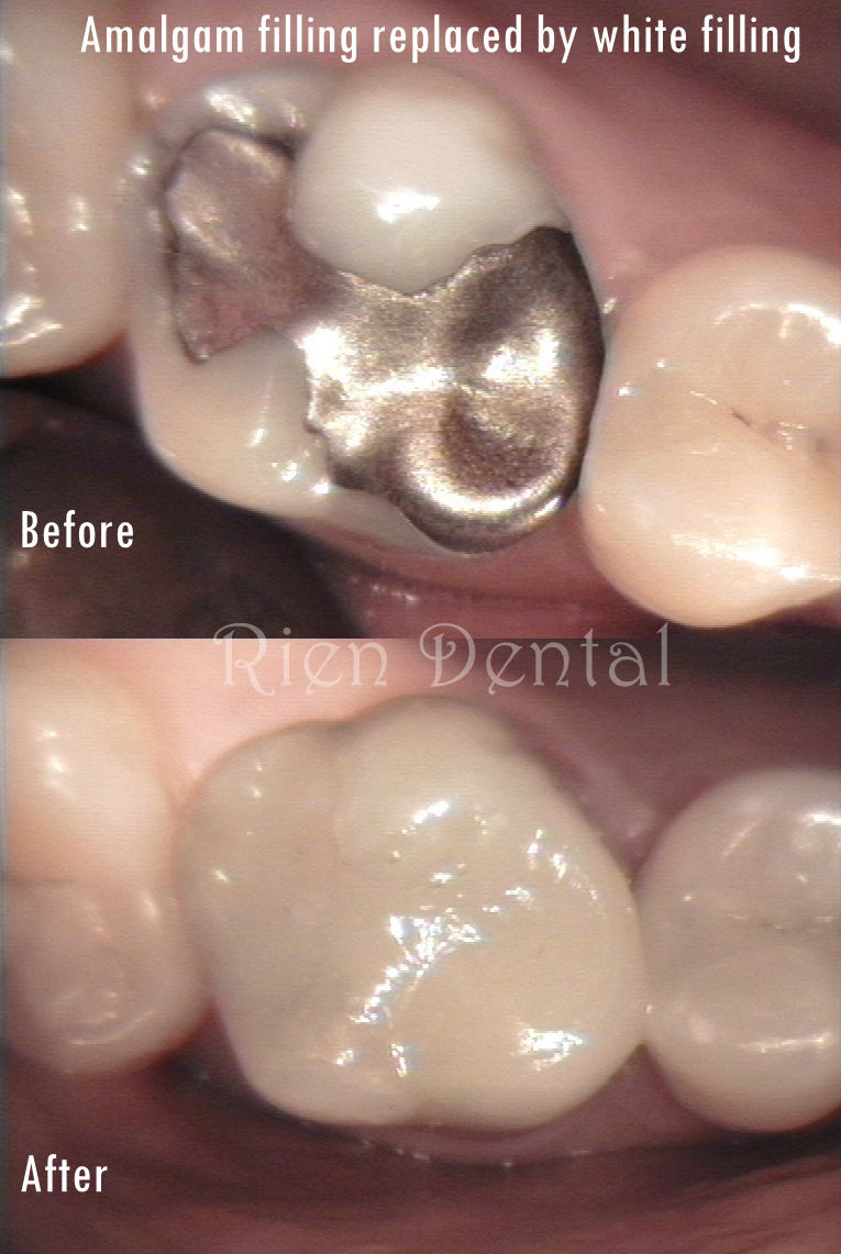amalgam filling replaced by white filling