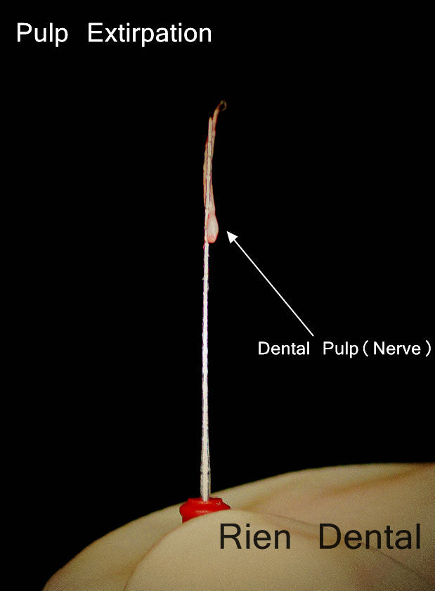 Dental Pulp (Nerve)