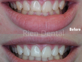A brighter smile with teeth whitening.