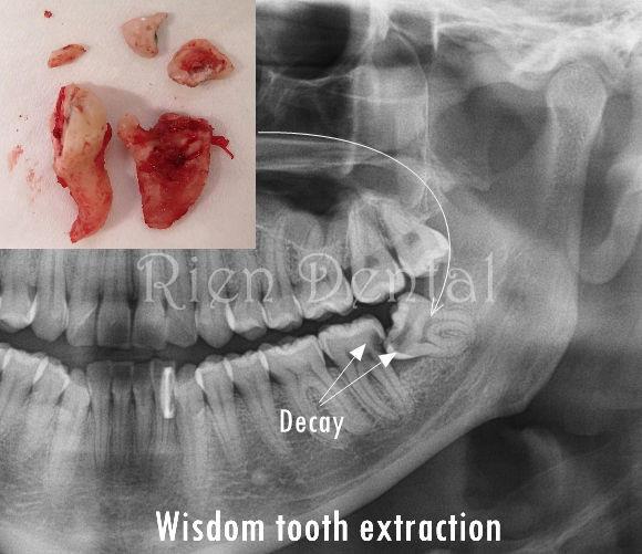 Wisdom tooth extraction