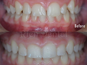 Fix the crooked teeth and close the gaps.