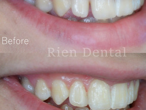 Close the gap with cosmetic bonding.