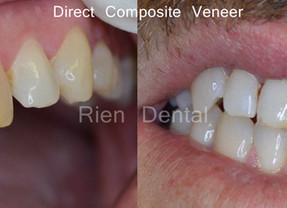 Direct Composite Veneer