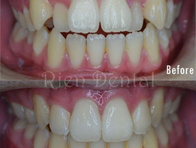 Crooked teeth fixed by braces