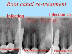Root canal re-treatment - fix failed root canal treatment.