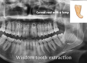 A wisdom tooth with a strong root.