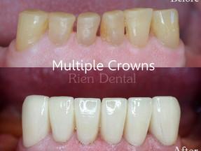 Multiple crowns to rebuild teeth.