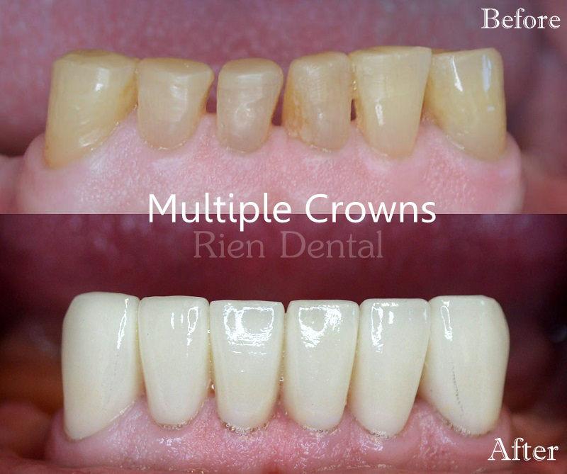 Multiple Crowns