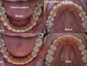 Fissure sealants and enamel hypoplasia.