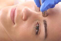 Beauty salon, microdermabrasion.jpg