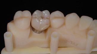 Full Zirconio, innovación en odontología.