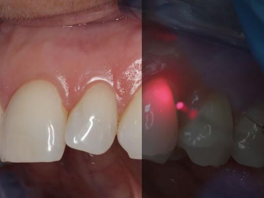 El láser de diodo contra la sensibilidad dental