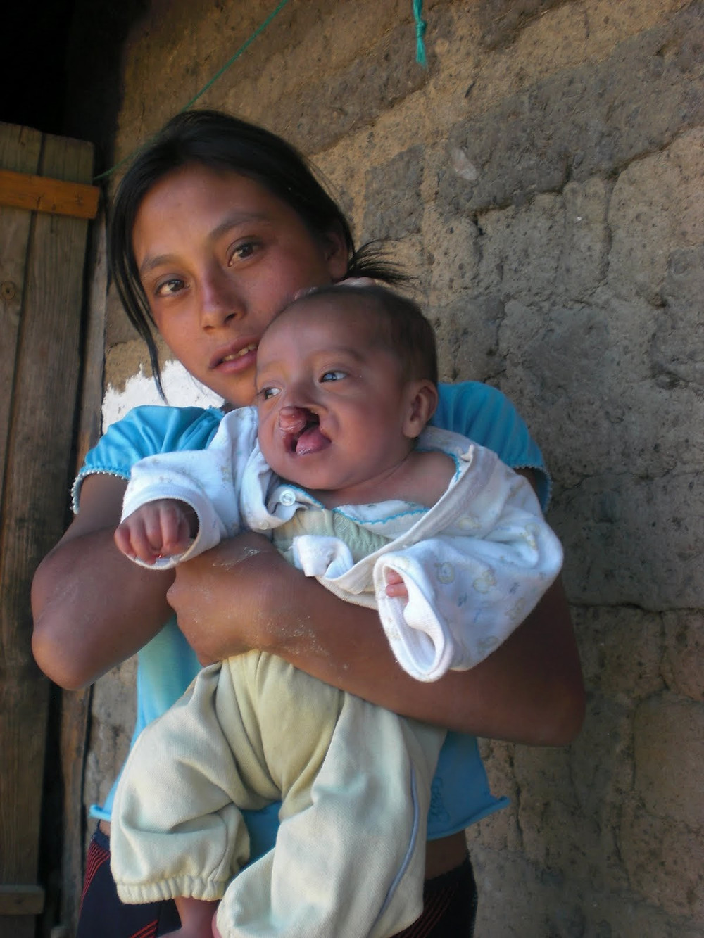 Lack of education, access to health services, and inadequate nutrition can lead to a poor start in life