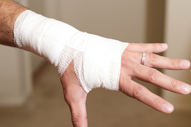 The Facts About Wrist Sprains