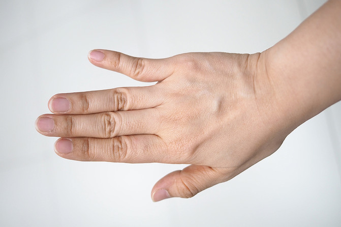 What to do About a Finger Dislocation