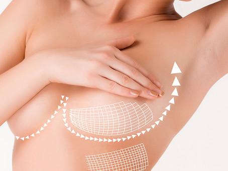 Breast Lift in Turkey - Mastopexy