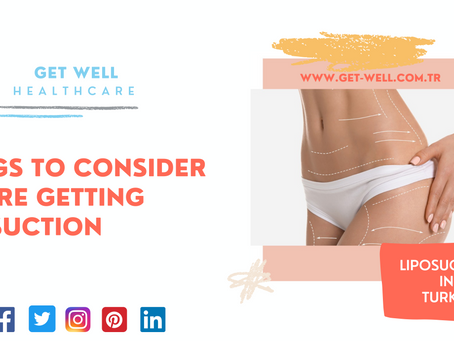 Things to consider before getting liposuction