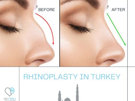 Rhinoplasty or Nose Job in Turkey
