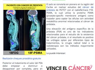 CDD Radioterapia en RD, pionera en estudios de cáncer de próstata