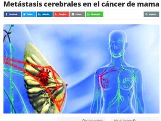 Metástasis cerebrales en el cáncer de mama