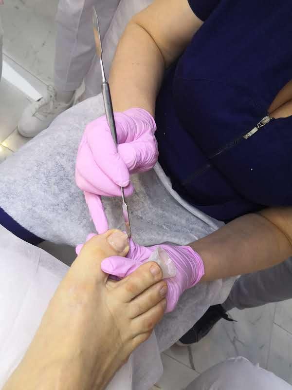 protesirovanie_50.jpeg