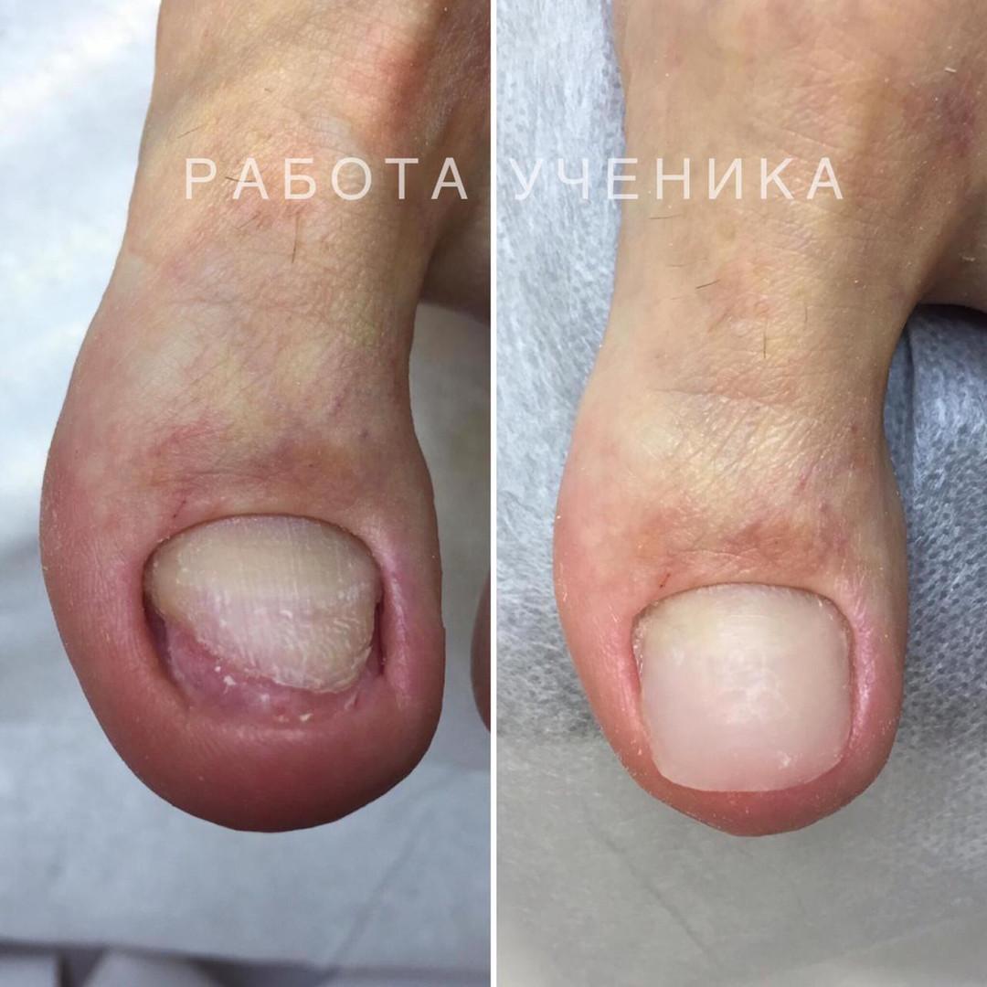 protesirovaanie_10.jpeg