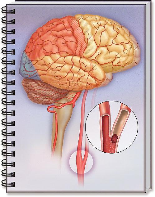 Stroke - Doctor's Notebook