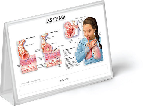 Asthma - Anatomical Tent Chart