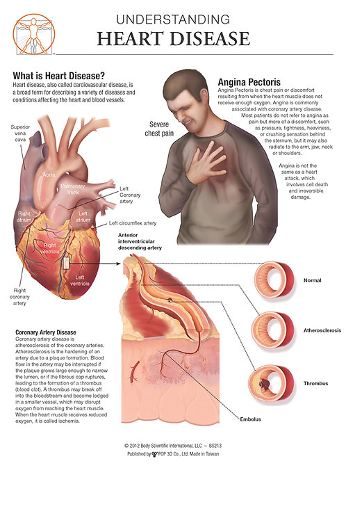 Heart Disease - Anatomical Wall Chart