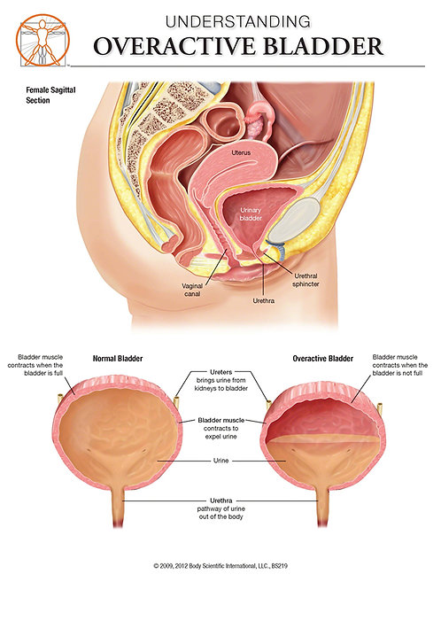 Overactive Bladder (Female) - Anatomical Wall Chart