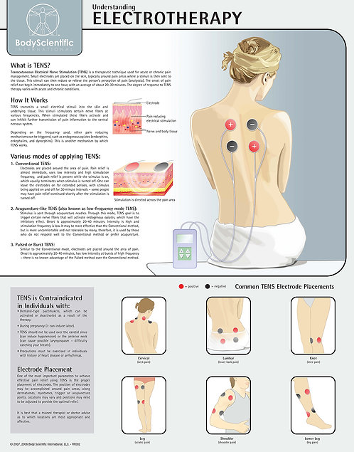 Electrotherapy - Anatomical Wall Chart