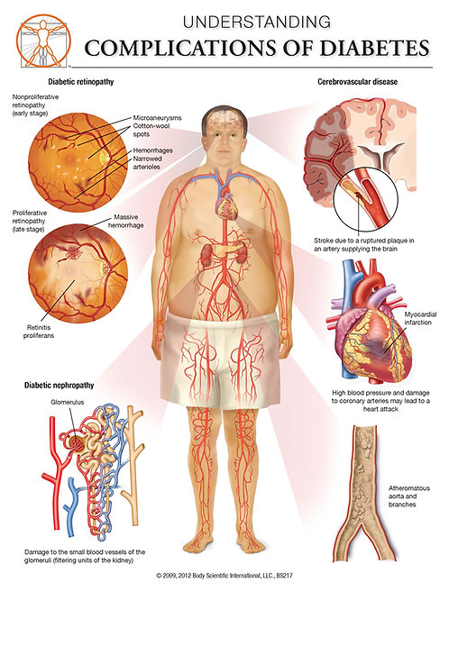 Complications of Diabetes - Anatomical Wall Chart