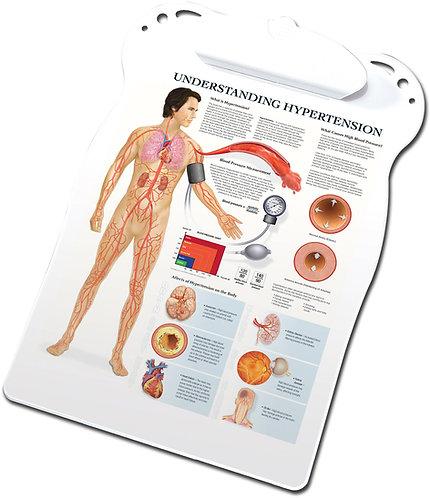 Hypertension - Clipboard