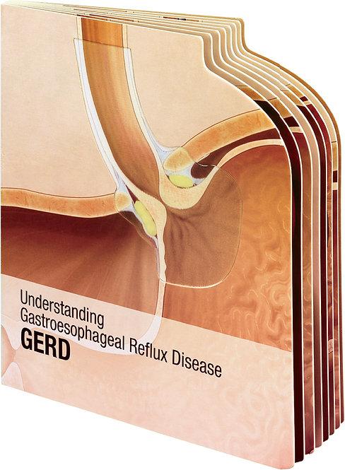 Understanding Gastroesophageal Reflux Disease (GERD) - Lenticular Book