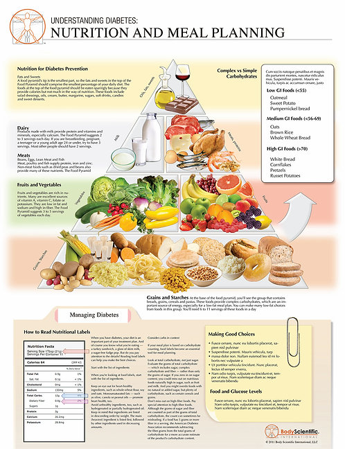 Nutrition for Type 2 Diabetes - Anatomical Wall Chart