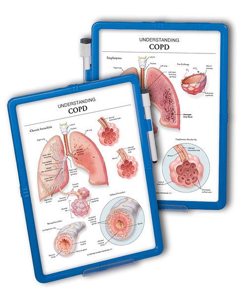 Understanding COPD  - Wipe-off Easel