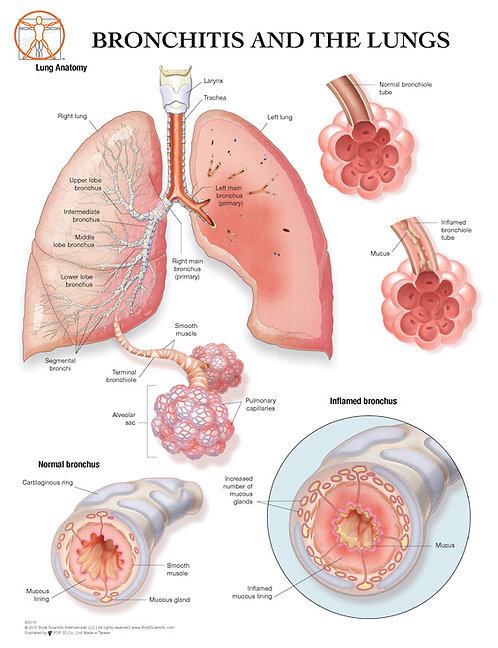 The Lungs and Bronchitis - Anatomical Wall Chart