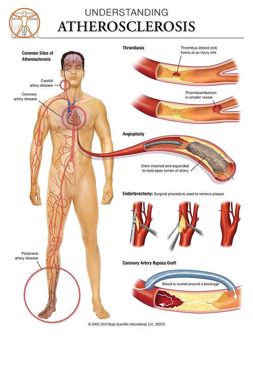 Atherosclerosis - Anatomical Wall Chart