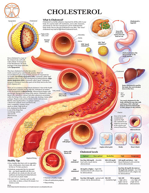 Cholestrol - Anatomical Wall Chart