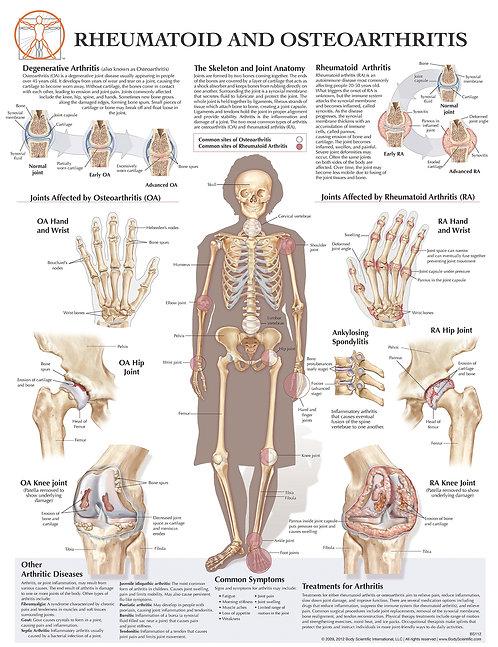 Rheumatoid and Osteoarthritis - Anatomical Wall Chart