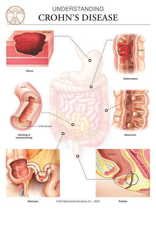 Crohn's Disease - Anatomical Wall Chart