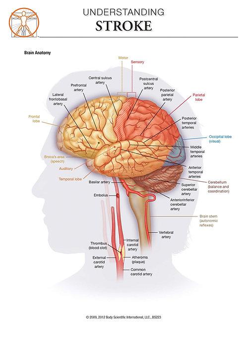 Stroke - Anatomical Wall Chart