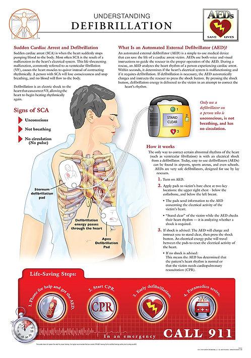 Understanding Defibrillation - Anatomical Wall Chart