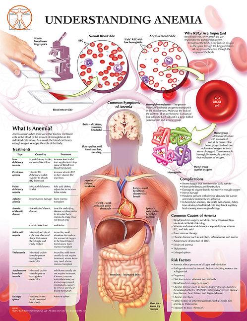 Anemia - Anatomical Wall Chart
