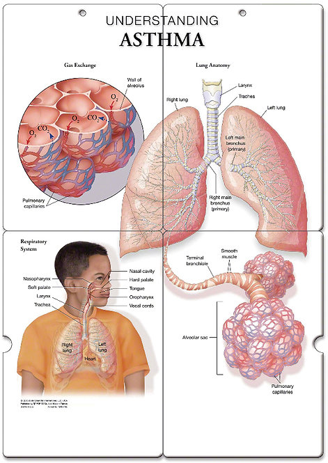 Asthma - Anatomical Folding Board Chart