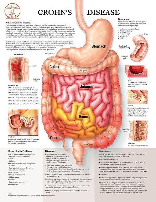 Crohn's Disease - Anatomical Wall Chart