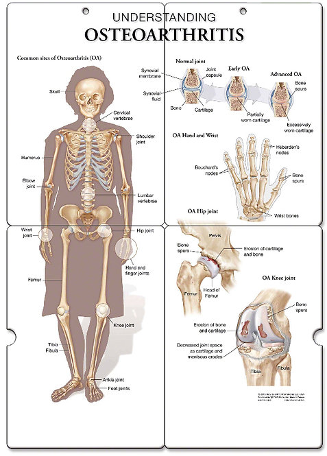 Arthritis - Anatomical Folding Board Chart