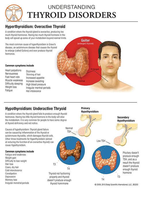 Thyroid Disorders - Anatomical Wall Chart