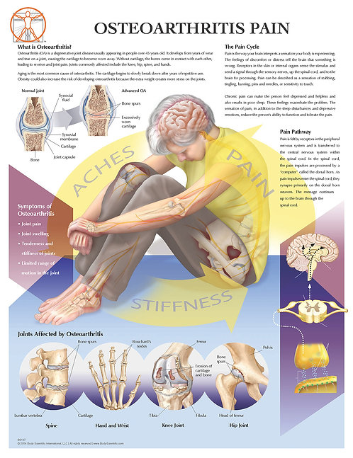 Osteoarthritis Pain - Anatomical Wall Chart