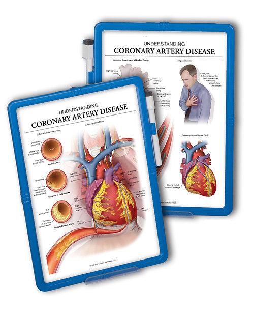 Understanding Coronary Artery Disease - Wipe-off Easel